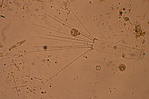 An image of a microscope slide, magnified. The background is tan and there are many small dots. On the right side of the frame is a cylindrical shaped plankton with spines coming off it to the left.